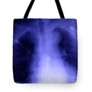 X-ray Of Implanted Defibulator Tote Bag