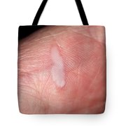 Burn On Hand Tote Bag
