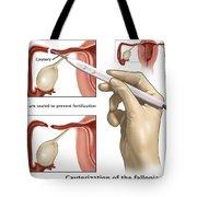 Cauterization Of The Fallopian Tubes Tote Bag