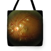 Cmv Retinitis Tote Bag by Science Source
