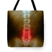 Compression In Lumbar Vertebrae Tote Bag by Science Source
