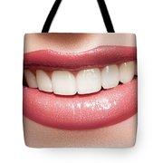Esthetics Of Smile  Dental Veneers Vs Orthodontic Treatment Tote Bag