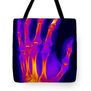 Finger Fracture Tote Bag