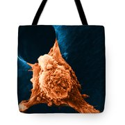 Metastasis Tote Bag by Science Source