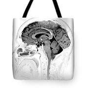 Normal Brain, Mri Tote Bag