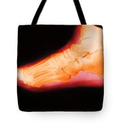 Right Foot Tote Bag