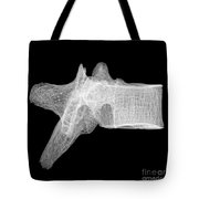 Human Vertebra T5, X-ray Tote Bag