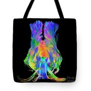 Brain Fiber Tracts, Dti Scan Tote Bag