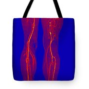 Atherosclerosis, Ct Angiogram Tote Bag