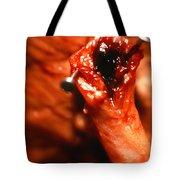 Blocked Artery. Tote Bag