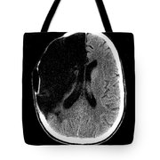Brain Stroke, Ct Scan Tote Bag