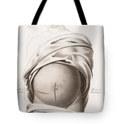 Cesarean Section, Incisions Tote Bag