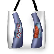 Deep Vein Thrombosis, Illustration Tote Bag