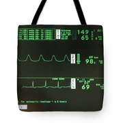 Ecg Monitor Screen. Tote Bag