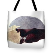 Enlarged Spleen With Infarct Tote Bag