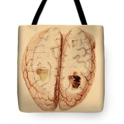 Extravasated Blood, Brain Tote Bag