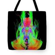 Fiber Tracts Of The Brain, Dti Tote Bag