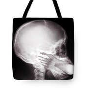 Foot In Mouth X-ray Tote Bag