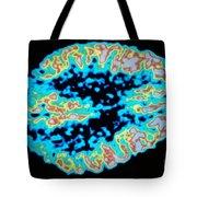 Glucose Metabolism Tote Bag by DOE / Science Source