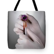 Hand Taking Top Off Test Tube Tote Bag