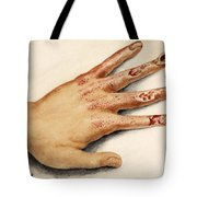 Hand With Roentgen Ray X-ray Tote Bag