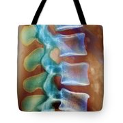 Healthy Lower Spine X-ray Tote Bag