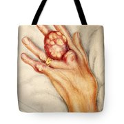 Left Hand With Tophus From Chronic Gout Tote Bag