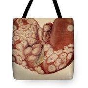 Liver, Sarcoma, Illustration, 1896 Tote Bag