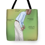 Man With Parkinsons Disease Tote Bag