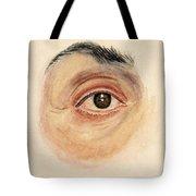 Melanoma Of Iris, Medical Illustration Tote Bag