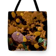 Microbial Discharge From Toothbrush Sem Tote Bag