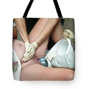 Midwife Removing Afterbirth Tote Bag