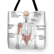 Multiple Sclerosis Symptoms Tote Bag