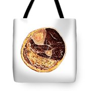 Muscle Degeneration, Fibrosis And Fat Tote Bag
