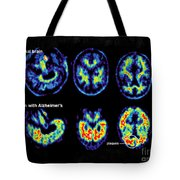 Normal And Alzheimer Brains, Pet Scans Tote Bag