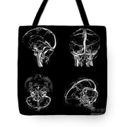 Normal Intracranial Venous System, 3d Ct Tote Bag