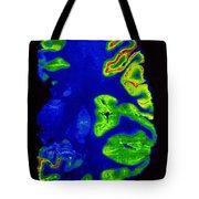Pet Scan, Healthy Brain Tote Bag