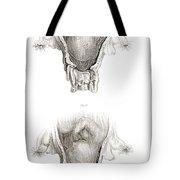 Placenta Previa, Illustration Tote Bag