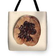 Renal Blood Clot, Kidney, Illustration Tote Bag