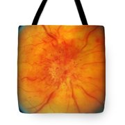 Retinal Papilledema Tote Bag by Science Source