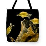 Rotifers Philodina Sp., Lm Tote Bag