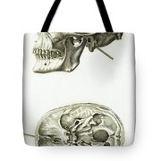 Skull With Head Wound, Illustration Tote Bag