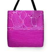 Striated Muscle Tote Bag