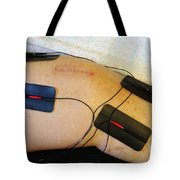 Transcutaneous Electric Nerve Tote Bag