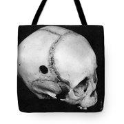 Trepanning: Skull Tote Bag