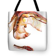 Two Sections Of Aortic Aneurysm Tote Bag