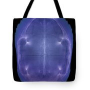 X-ray Of A Turtle Shell Tote Bag