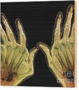Arthritic Hands, X-ray Wood Print
