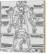 Bloodletting Chart, 1493 Wood Print