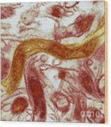 Borrelia Burgdorferi Lyme Disease, Tem Wood Print